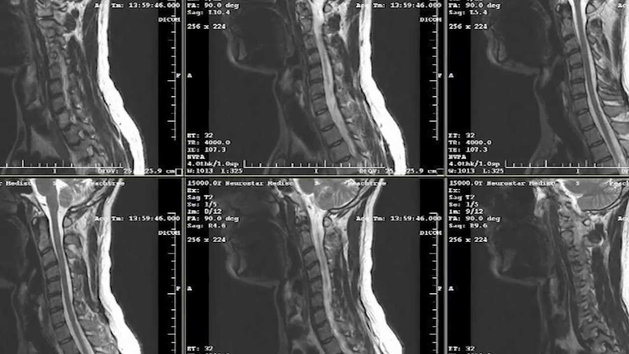 X-ray is what it is. How is radiography of the spine, joints, various organs done? 100