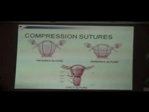 Part 4: Surgical Measures PPH