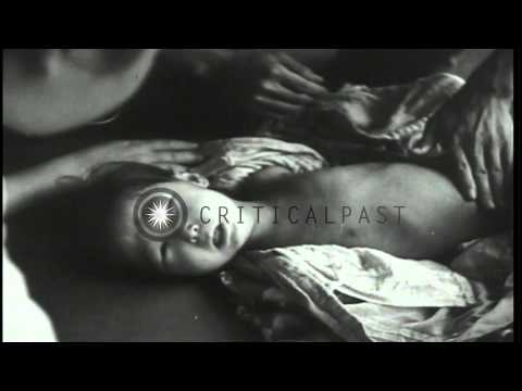 Effects of atomic explosion on bodies of Japanese child victims in Nagasaki after...HD Stock Footage