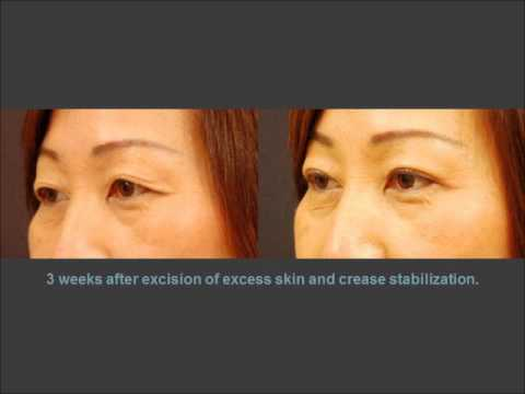 Asian eyelid surgery crease
