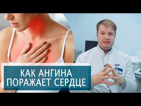 КАК АНГИНА , ТОНЗИЛЛИТ ПОРАЖАЕТ СЕРДЦЕ? | Ревматическая болезнь сердца | Симптомы, Лечение