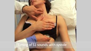 AUSCULTATION in the Cardiovascular Examination of the Cardiovascular System