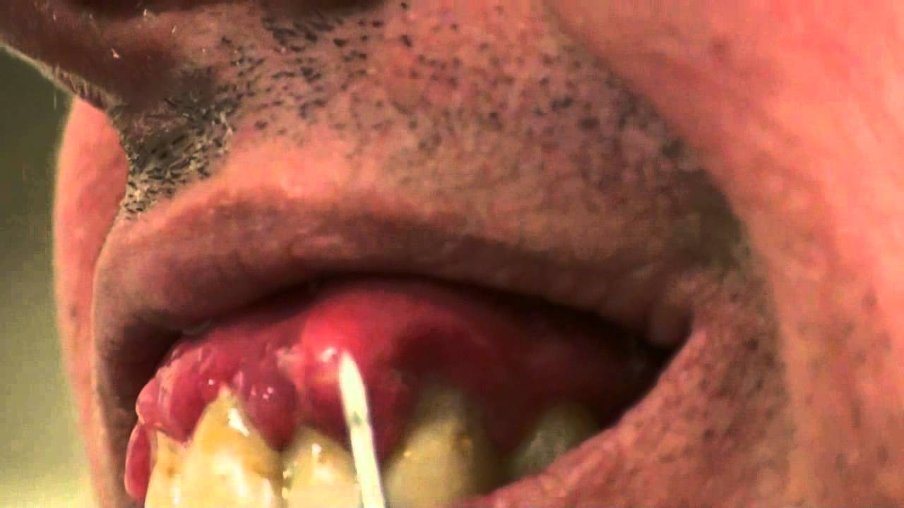 Lancing An Abscess Are Home Treatments Good Or Bad For