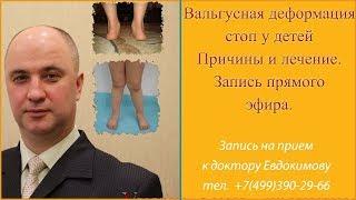 вальгусная деформация стоп у детей  Причины и лечение  Запись прямого эфира доктора евдокимова с отв