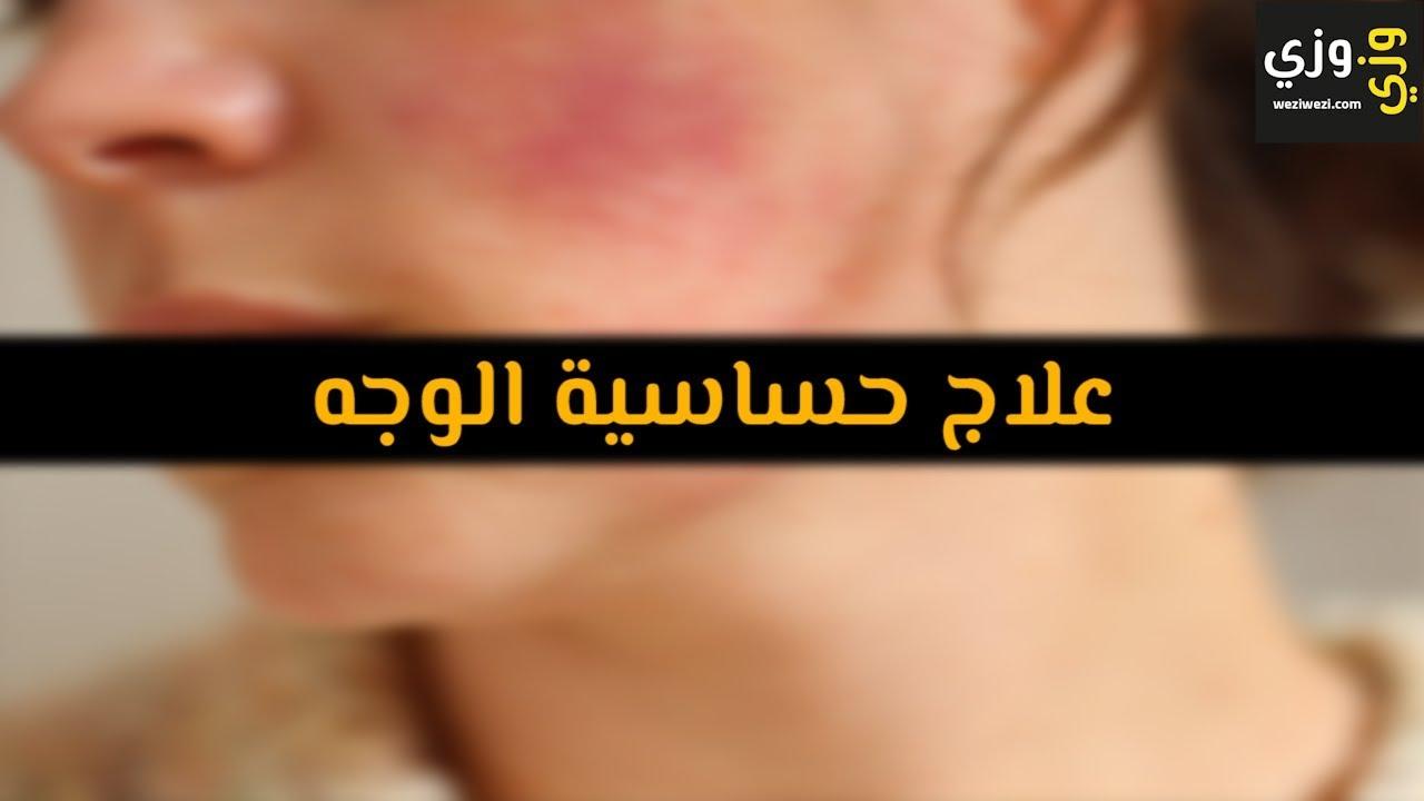 أهم علاج حساسية الوجه Youtube