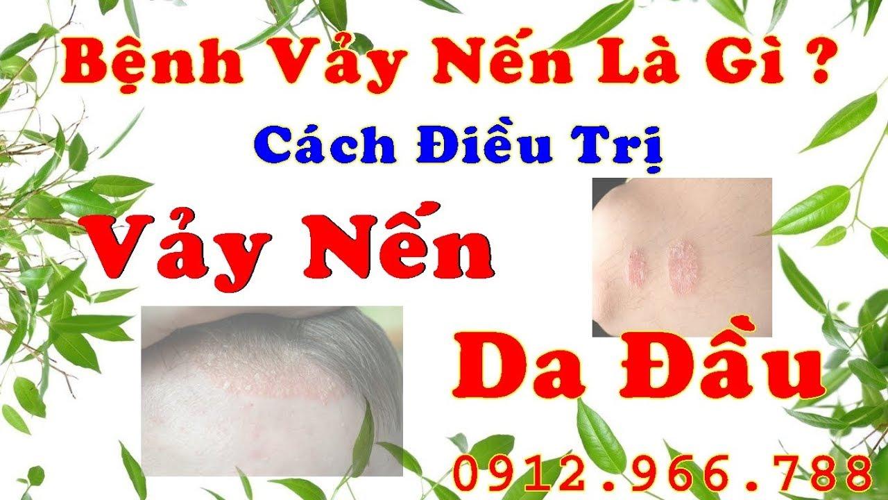 Bệnh vảy nến là gì, cách trị bệnh vảy nến da đầu, thuốc trị vảy nến,  viem da co dia