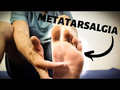 metatarsalgia-treatment-[best-ball-of-foot-pain-relief-2020]