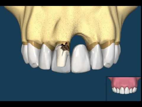 Diş kaybınız varsa en iyi çözüm nedir ?  Protez, köprü ve İmplant:  Hangisi daha sağlıklı ?