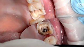 Bọc răng sứ cho răng hàm bị sâu như thế nào