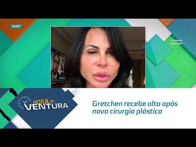 Mais uma! Gretchen recebe alta após nova cirurgia plástica