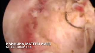 Резидуальный послеродовый эндометрит  Синдром Ашермана крайней степени