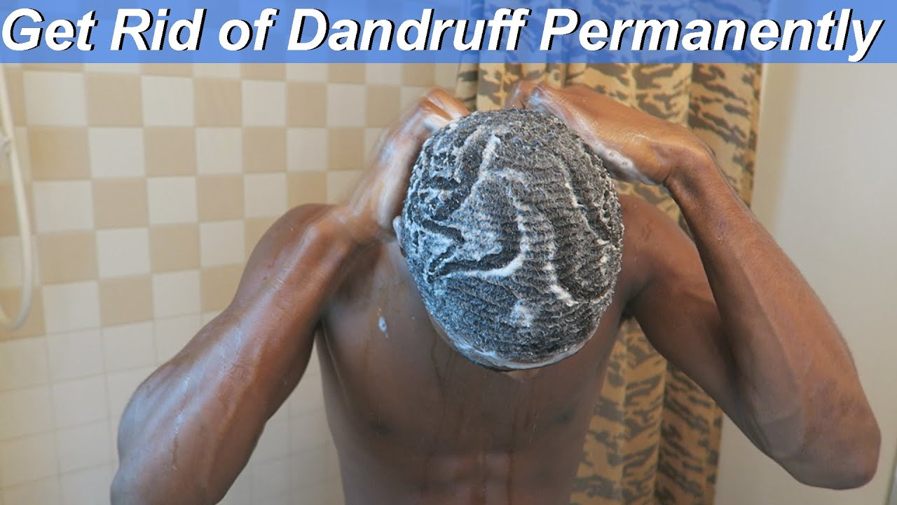 How To Get Rid Of Dandruff At Home  Naturally  U0026 Permanently