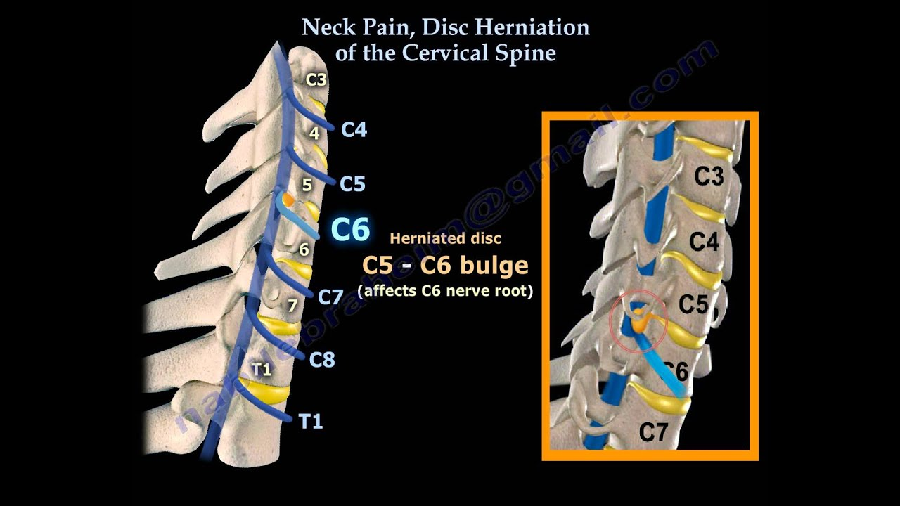 neck pain disc herniation of the cervical spine everything you