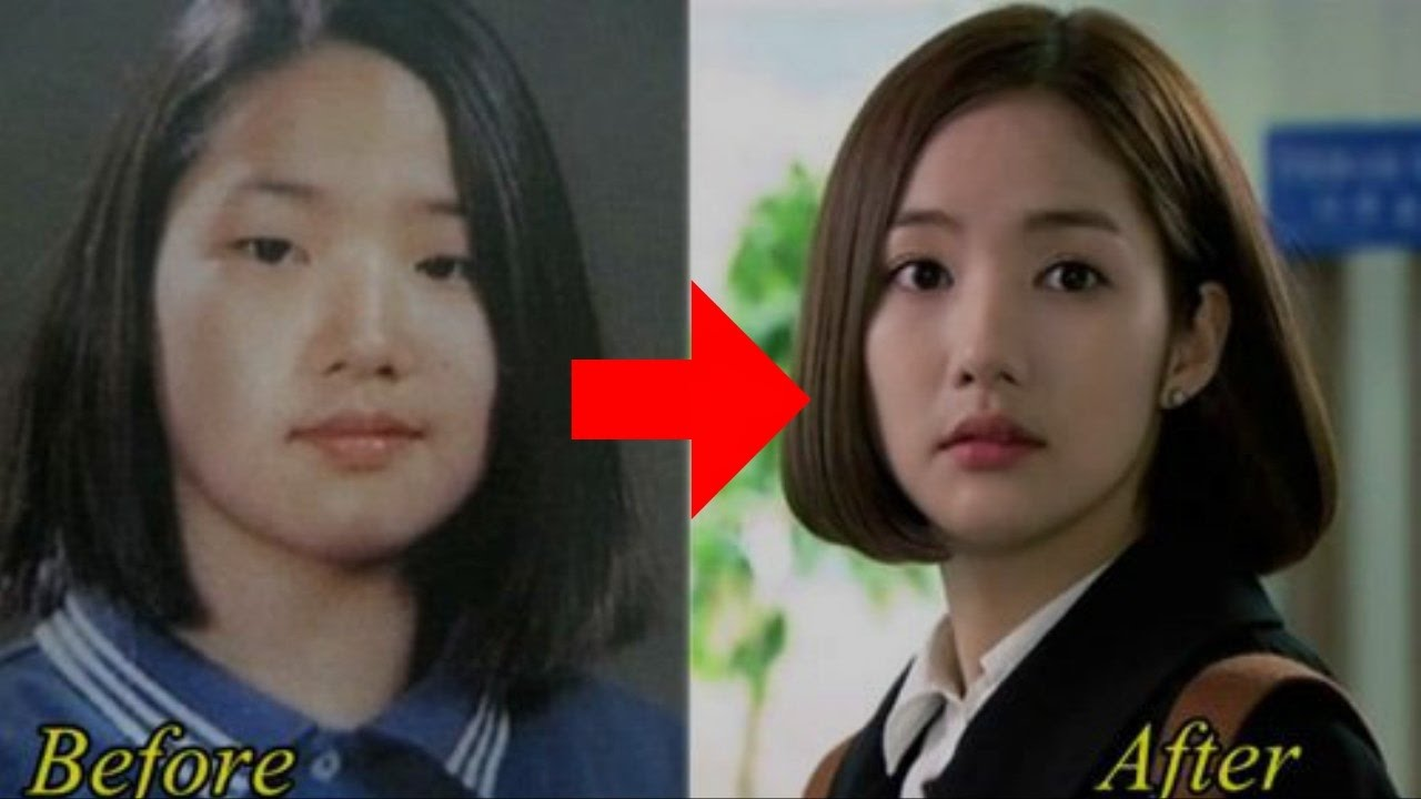 10 korean celebrities who have admitted to plastic surgery - youtube
