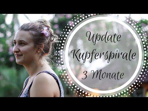 Update Kupferspirale 3 Monate   Periode, Blutung, Schmerzen, Nebenwirkungen   FAZIT