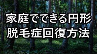 円形脱毛症の【悩み】家庭でできる回復法 thumbnail