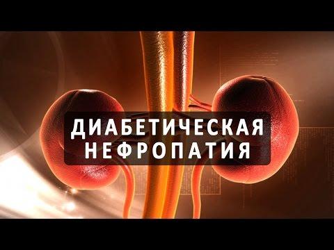 Диабетическая нефропатия как осложнение сахарного диабета