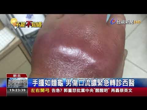 搬重物手腫男針灸惡化蜂窩性組織炎