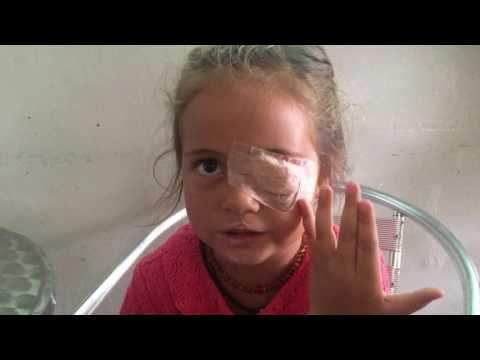 visit to the clinic in Costa Rica - after insect removal from her eye