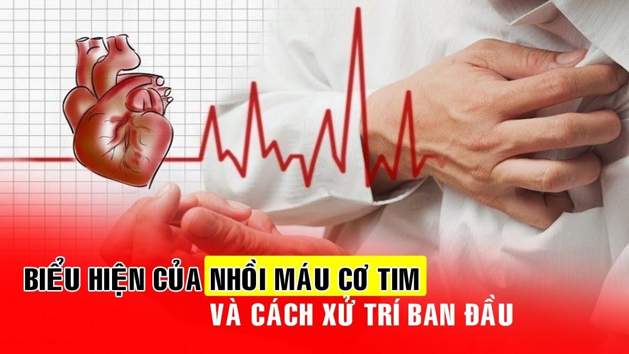 Biểu hiện của nhồi máu cơ tim cấp và cách xử trí ban đầu | Bài Thuốc Nam