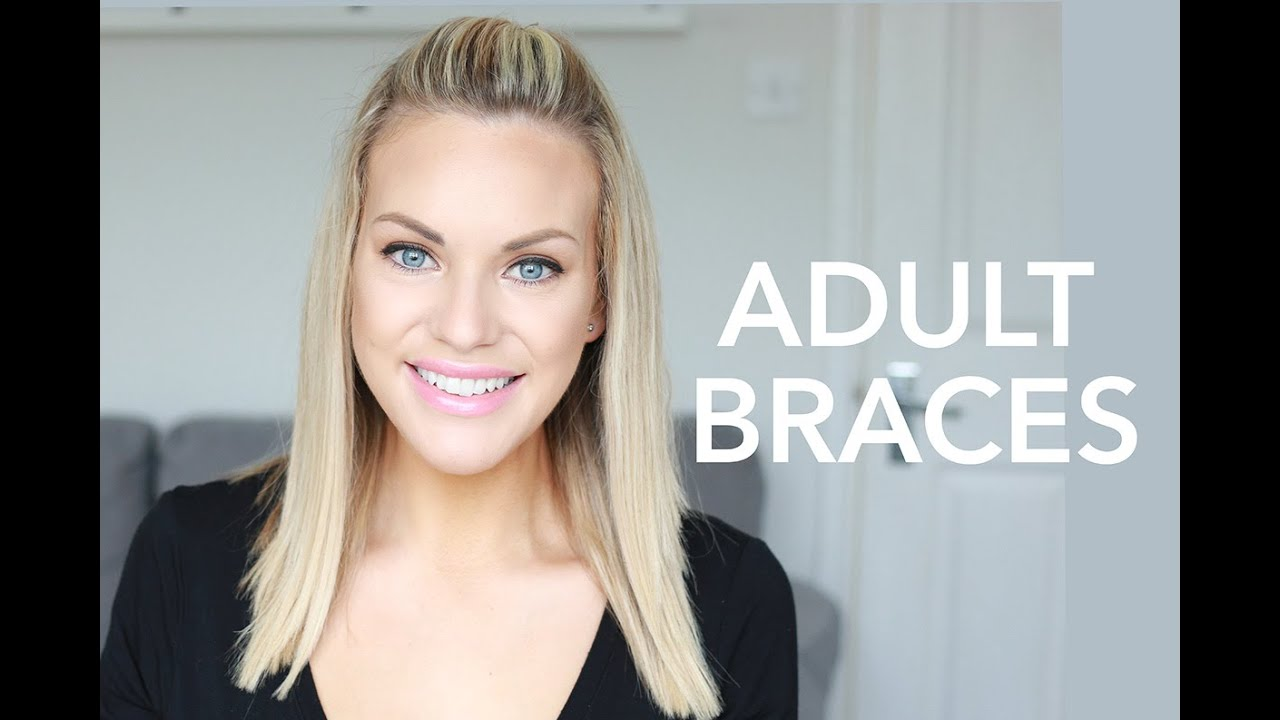 Braces For Adult 84