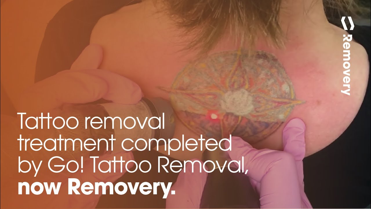 Laser tattoo removal of a multi color tattoo between for How to prevent tattoo fading