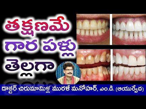 Tips for Teeth Whitening | Ayurvedic Tips for Teeth Whitening | Dr. Murali Manohar Chirumamilla