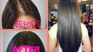 Hair Loss Treatment at home - How To Grow Hair Faster - How To Stop Hair Loss