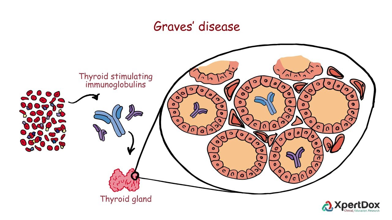 Graves Disease When Your Body Produces Too Much Thyroid Hormone Youtube