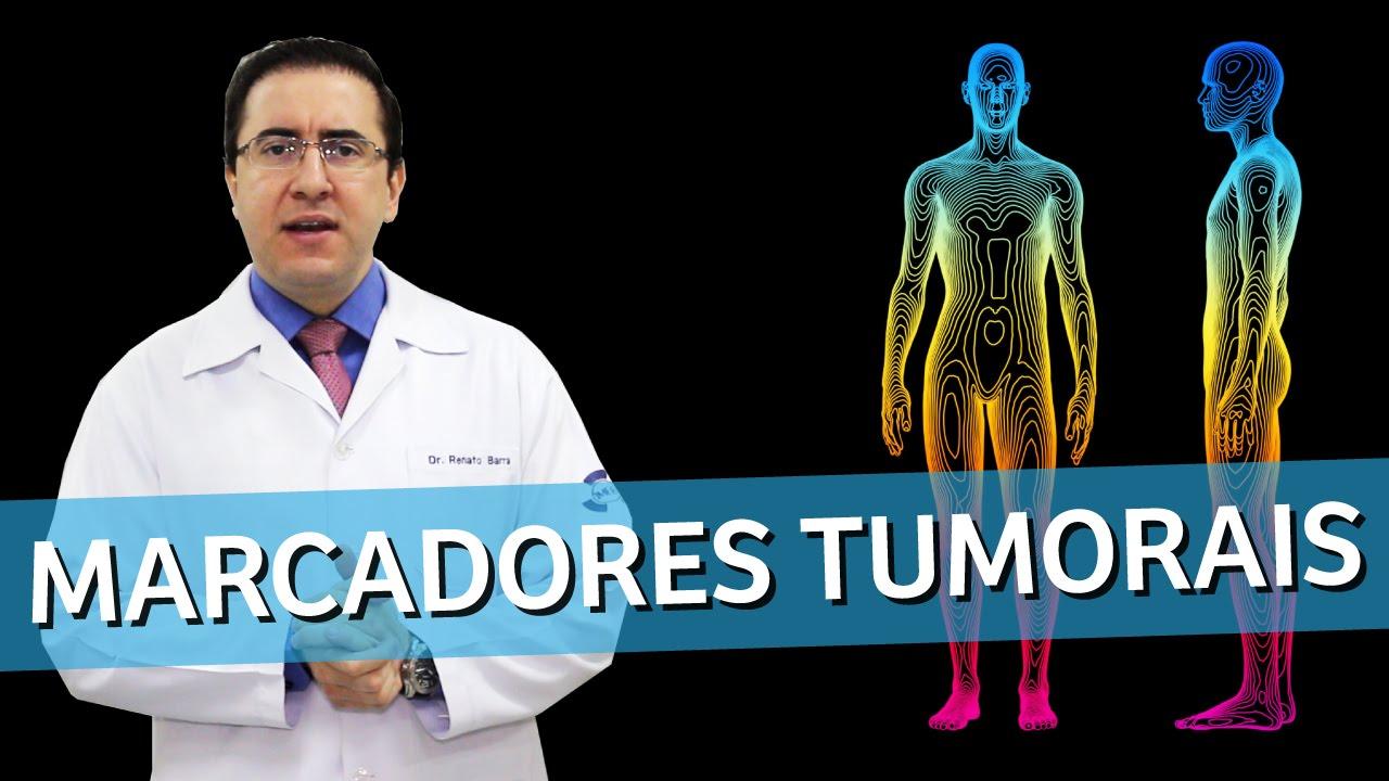marcadores tumorais cancer de prostata