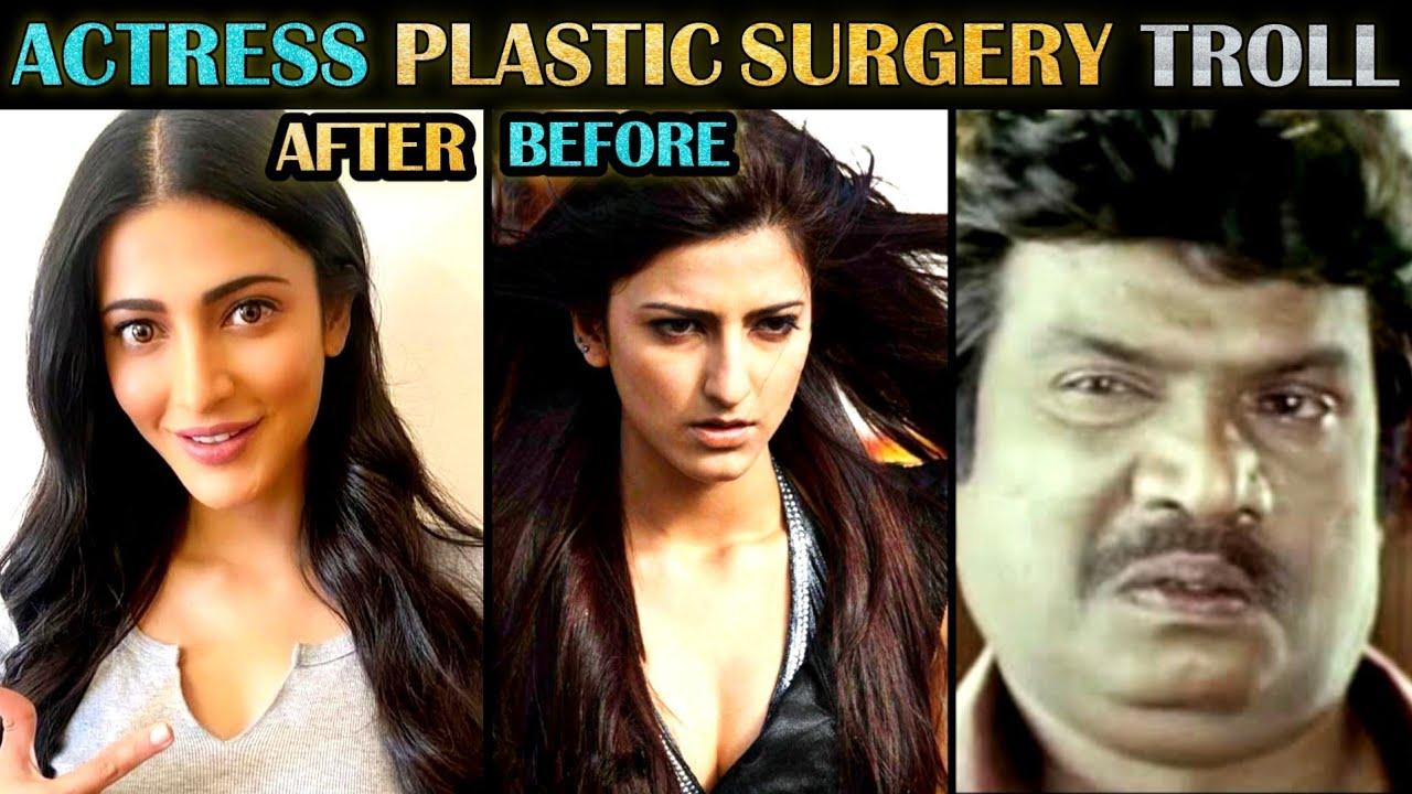 Actresses Before & After Plastic Surgery Troll - Part 2 | Indian Actresses | Tamil | Rakesh & Jeni