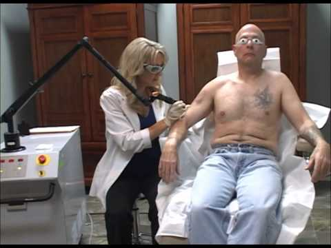 Laser Tattoo Removal Video Fort Lauderdale