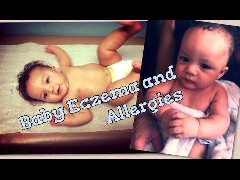 Baby Allergies And Eczema Relief Ideas | What Works For Us!