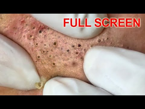 Blackheads removal - Best Pimple Popping Videos