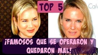 FAMOSOS que se OPERARON y QUEDARON MAL - TOP 5