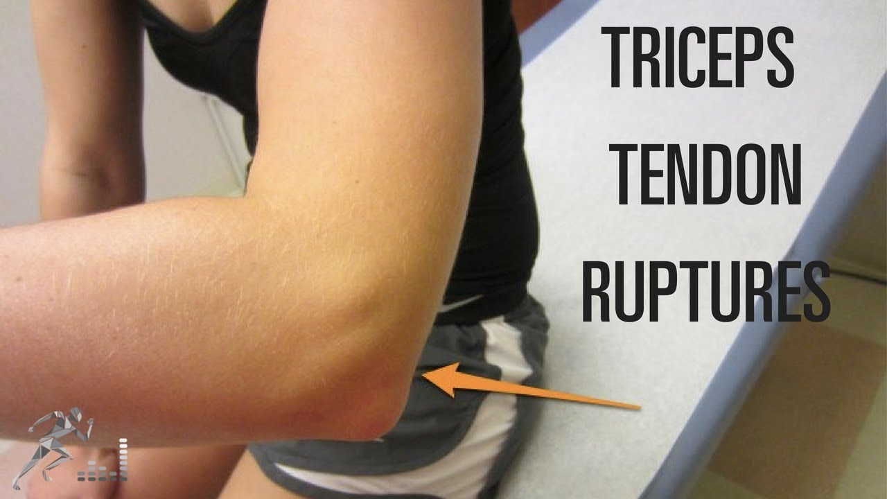 Triceps tendon rupture Mechanism of injury and treatment