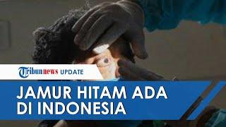 Download Jamur Hitam Mematikan yang Melanda India, Sudah Ada di Indonesia sebelum Pandemi, Kenali Gejalanya