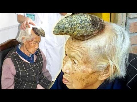 Huge Horn Grows On Woman's Head - Shocking Condition