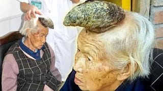 Huge Horn Grows On Woman