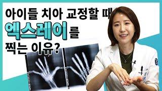 치아교정할 때 손목 엑스레이 찍는 이유? [성남서울플러…