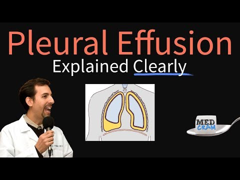 Pleural Effusion Explained Clearly - Causes, Pathophysiology, Symptoms, Treatment,