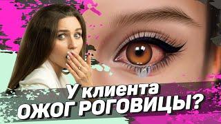 Ожог глаз при татуаже Безопасный перманентный макияж глаз и ошибки в работе