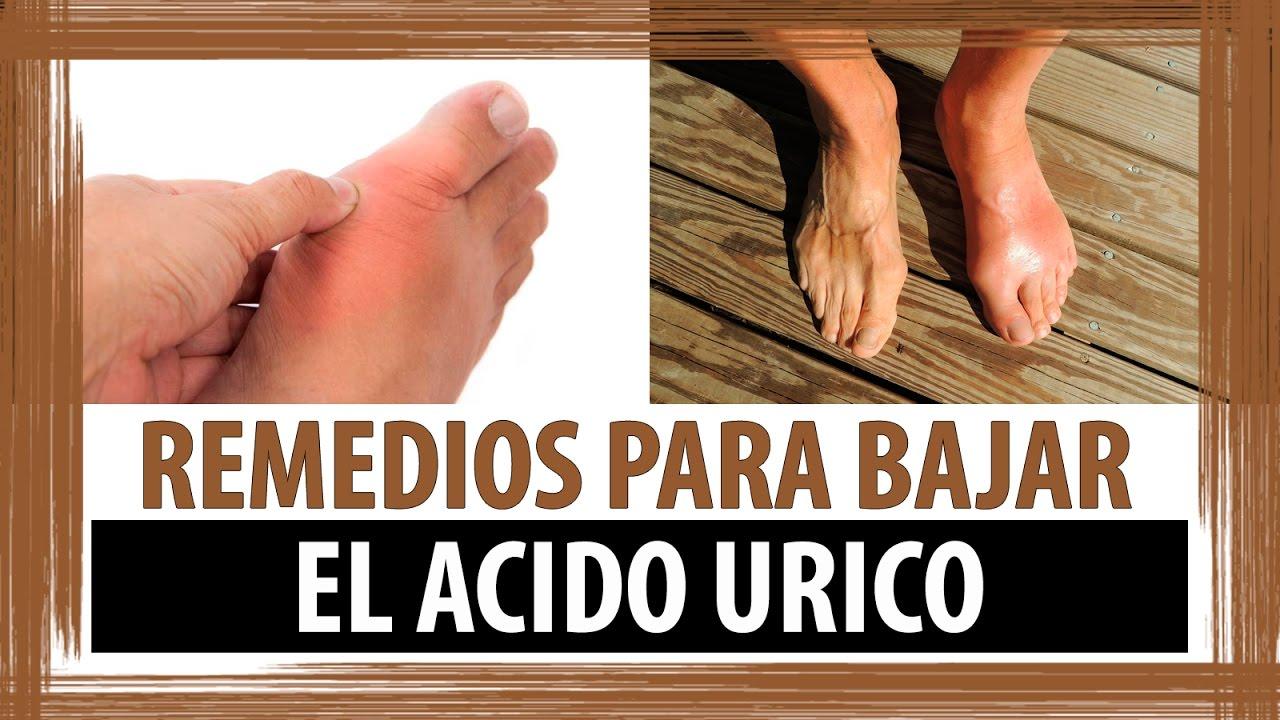 algun remedio para la gota o acido urico alimentos para reducir niveles de acido urico acido urico symptoms