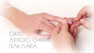 видео Что делать, если отрезали кусочек пальца