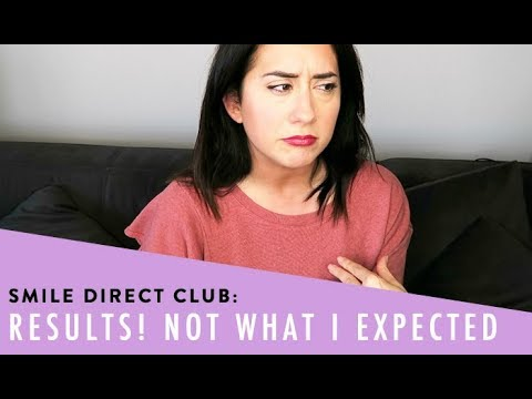 Smile Direct Club Review Final Thoughts Doovi