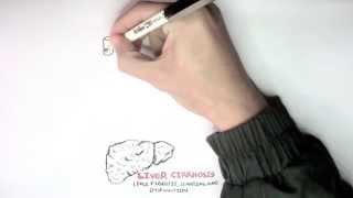 Liver Cirrhosis (Causes I)