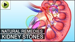 Kidney Stone - Natural Ayurvedic Home Remedies
