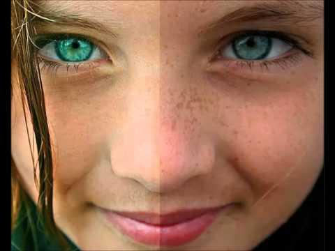 La cosmética medicinal de las manchas de pigmento sobre la persona