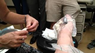 Wound vac interdigital