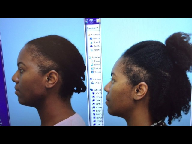 African-American Hair Transplant Early Result + View of Donor Incision